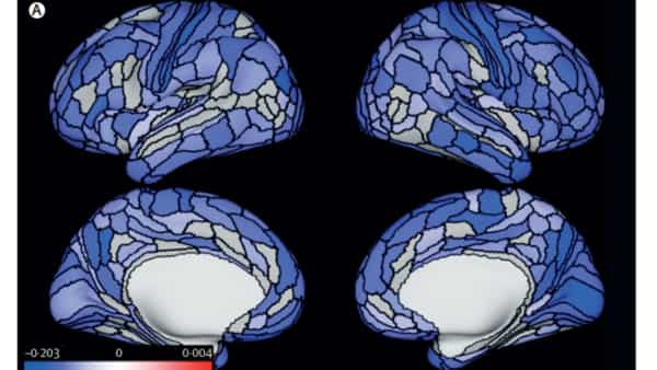 Lancet study uncovers an uncomfortable truth: Bullies have smaller brains