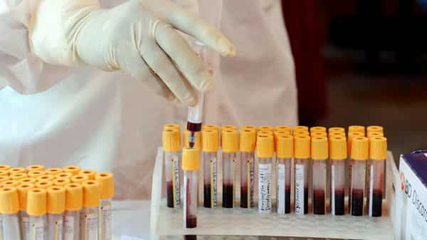 ICMR doctors collect blood samples for the study of Herd Immunity. (ANI)