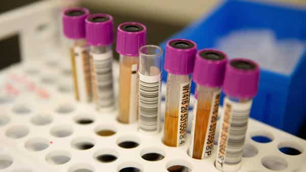 Convalescent plasma samples in vials are seen before being tested for COVID-19 antibodies. (REUTERS)