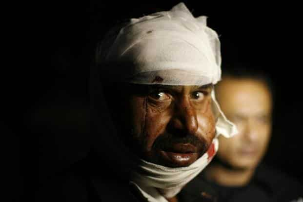 A man wounded in the suicide bomb attack, in a hospital in Wagah border, near Lahore.Reuters