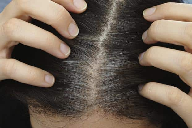 The researchers said identifying this gene could offer a path forward for developing a treatment that could prevent or reverse graying. Photo: iStock